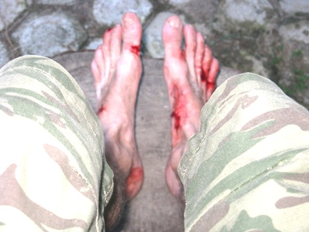 Author's de-leeched bleeding feet.