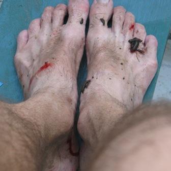 Author's leechy feet.